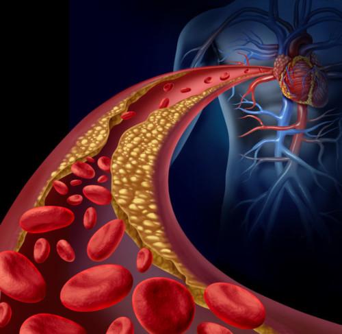 Bluthochdruck Gefaessablagerungen